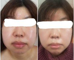 顔の筋膜リリース