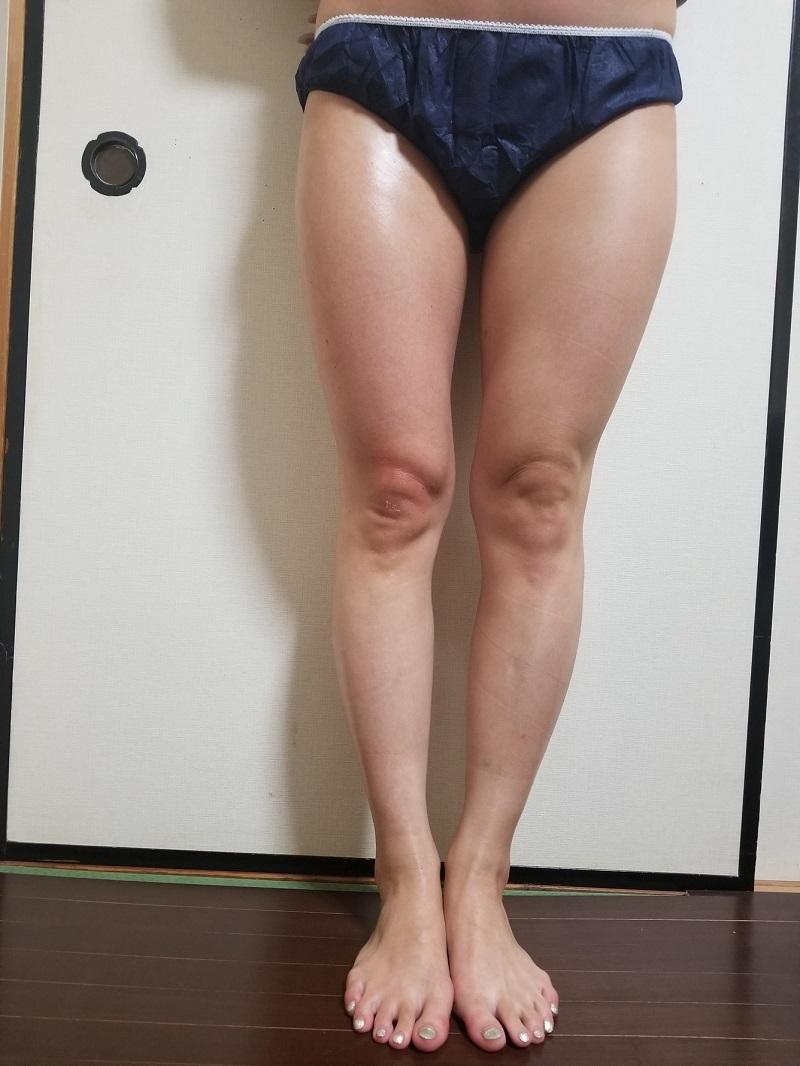 筋膜リリース 左右比較