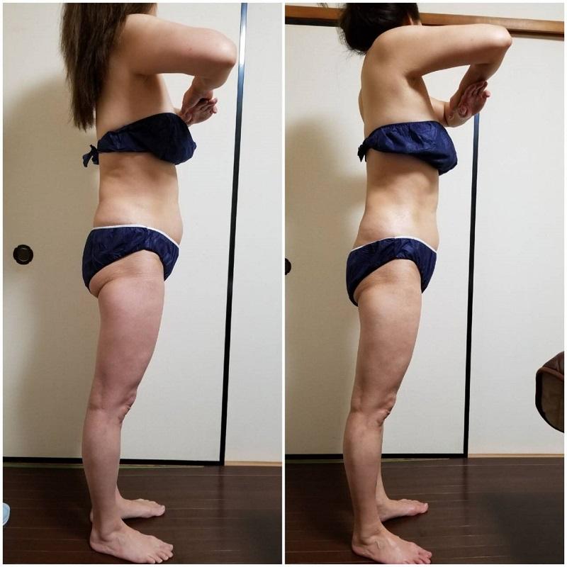 筋膜リリース 1回の結果