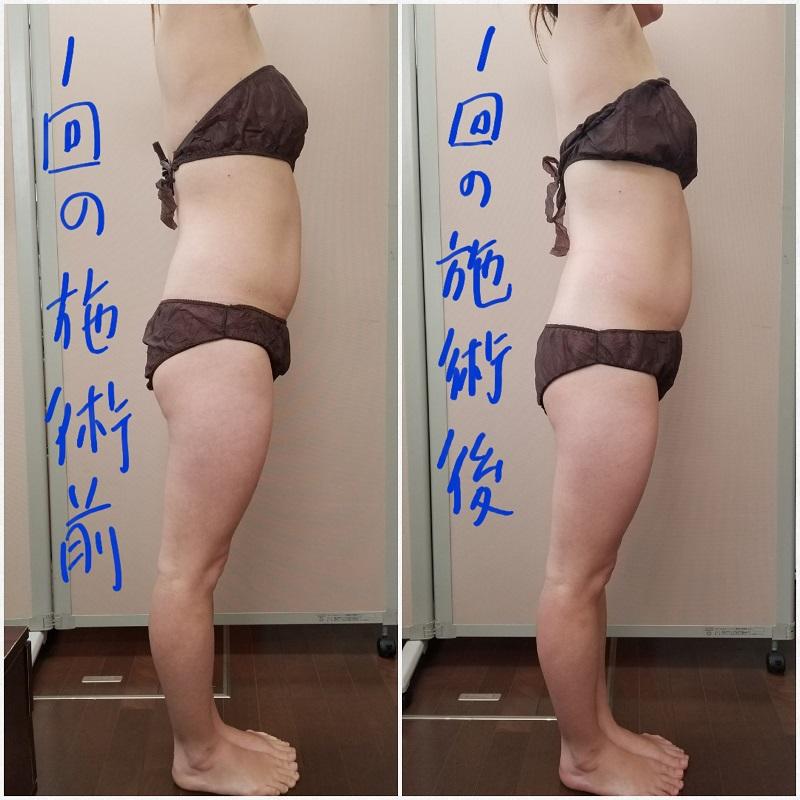 筋膜リリース ビフォーアフター サイド