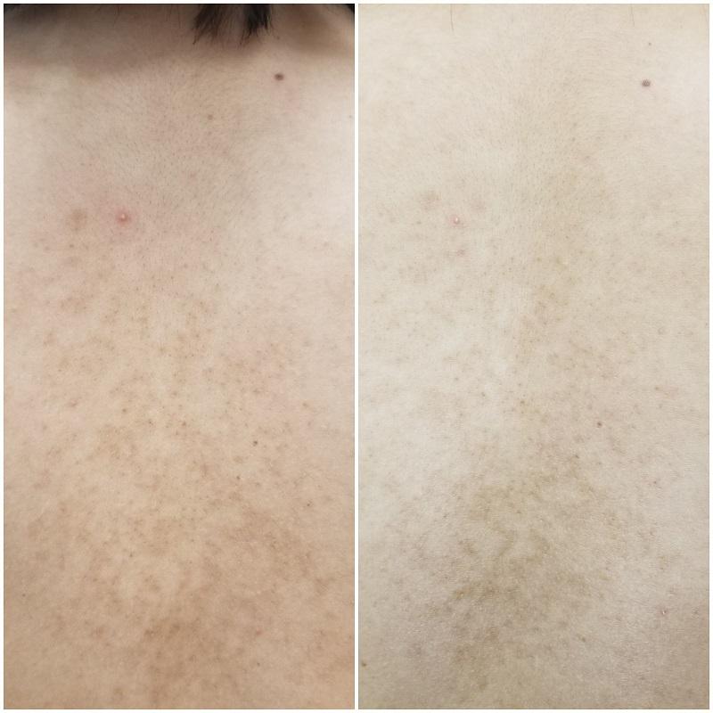 毛孔性苔癬 ディープセラピー