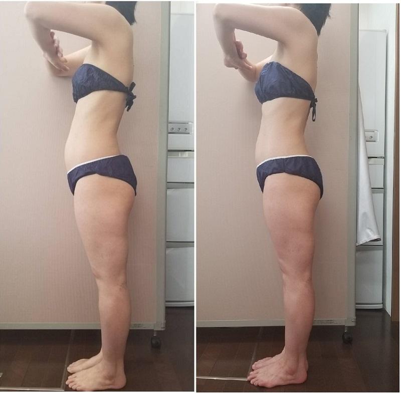 反り腰 筋膜リリース