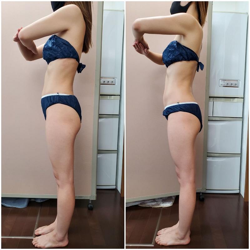 姿勢矯正 筋膜リリース
