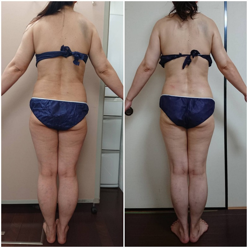 筋膜リリースダイエット効果