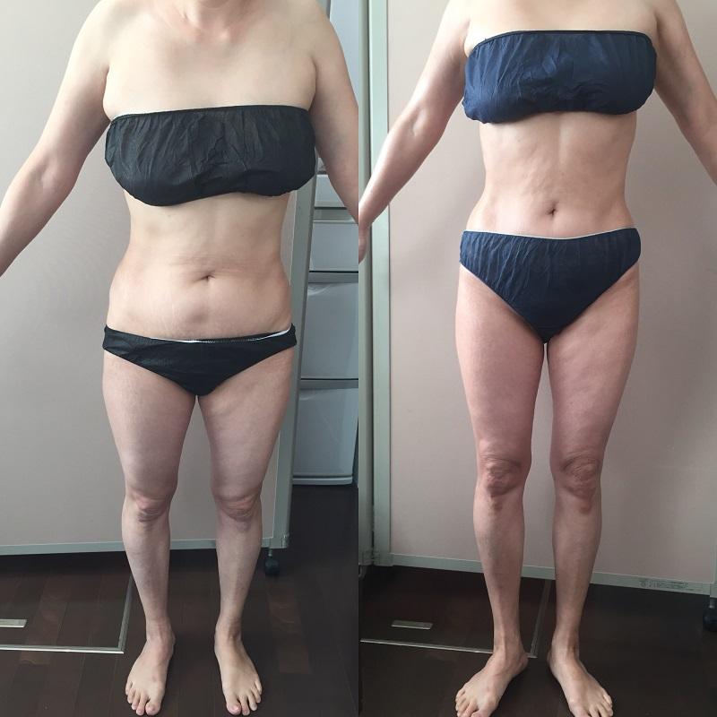 筋膜セラピー 50代女性