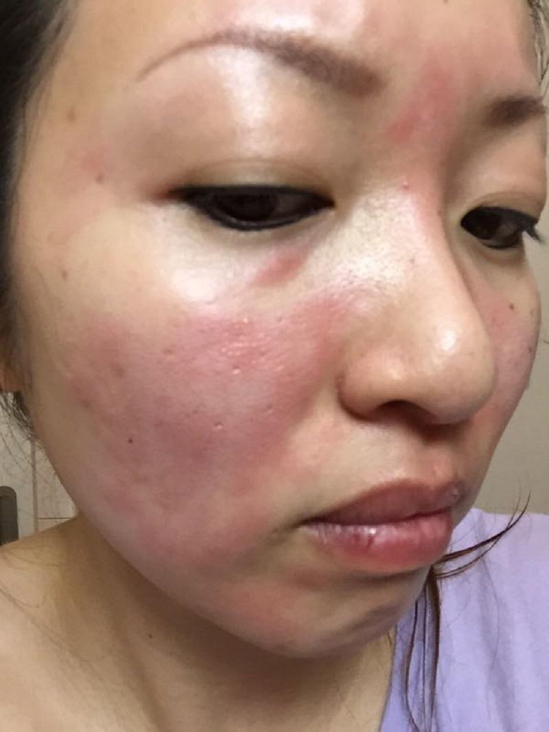 日光アレルギー