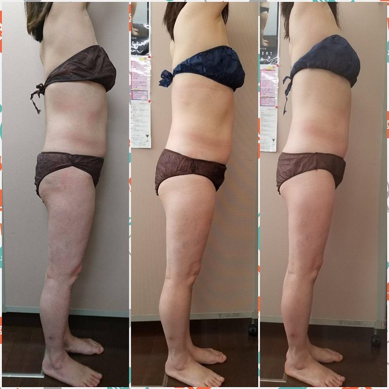 筋膜リリース 2回の結果