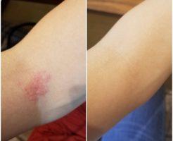 ディープセラピー 痒疹