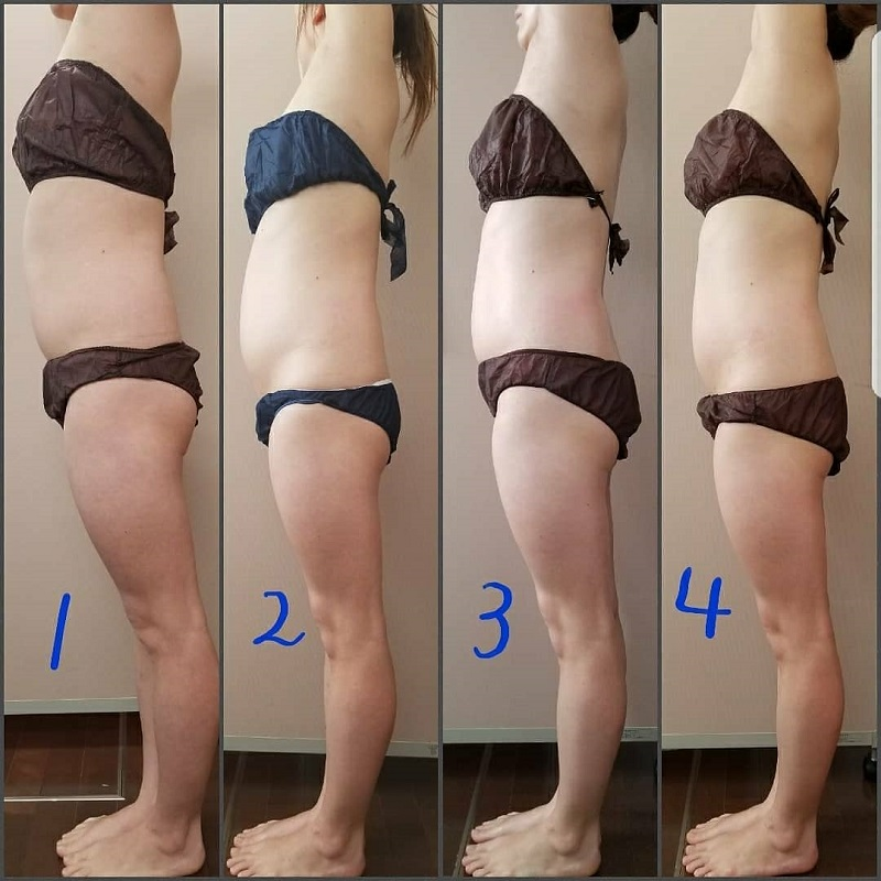 筋膜リリース 4回