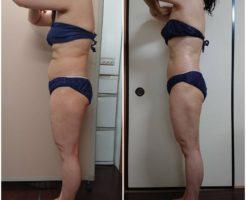 筋膜リリースダイエット