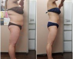 30kg減 筋膜リリース