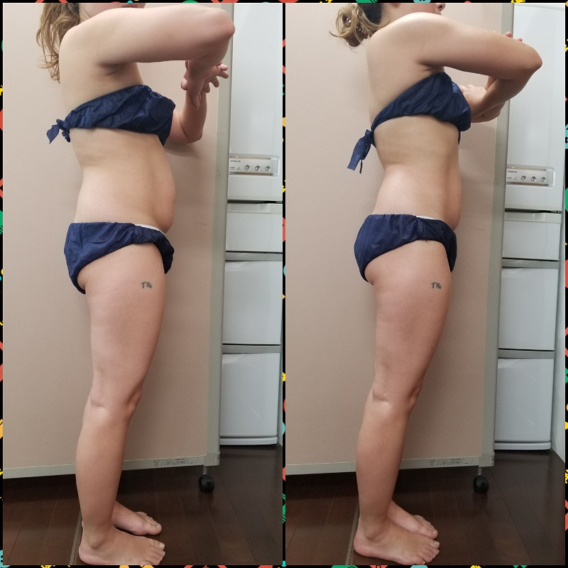 筋膜リリース 結果重視