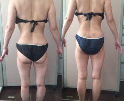 50代女性 筋膜セラピー 5回