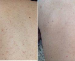 男性 アレルギー跡
