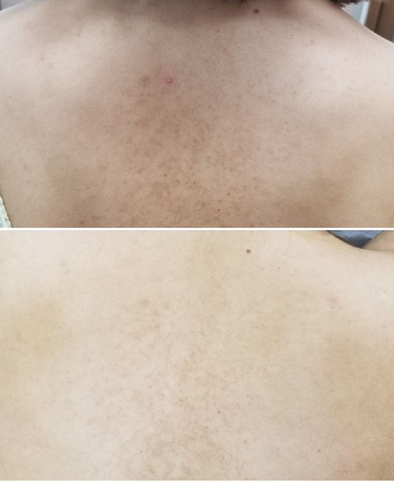 毛孔性苔癬 背中