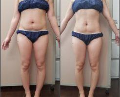 筋膜リリース 4回の結果