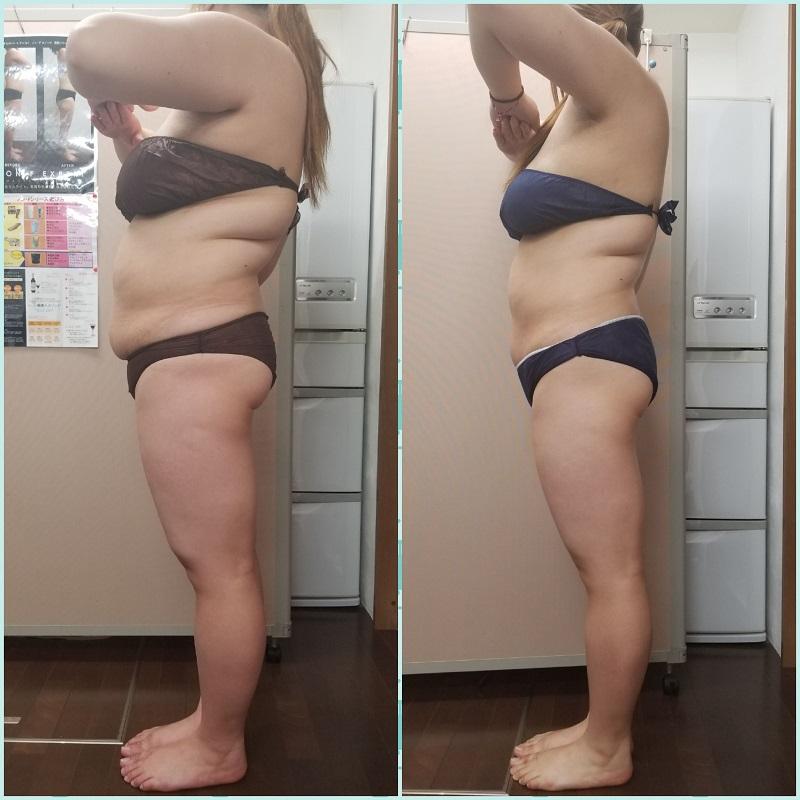 筋膜リリースで体質改善