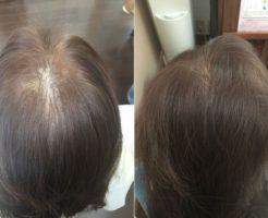 女性の薄毛改善