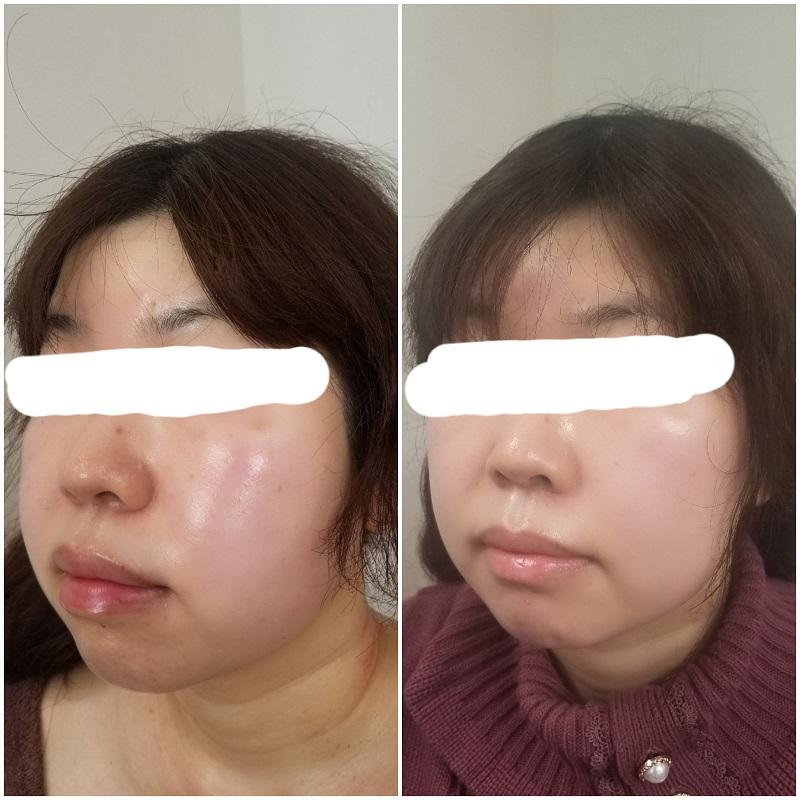 筋膜リリース 顔
