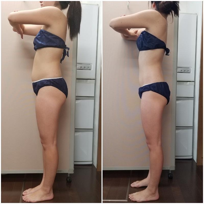 筋膜リリース 3回の結果