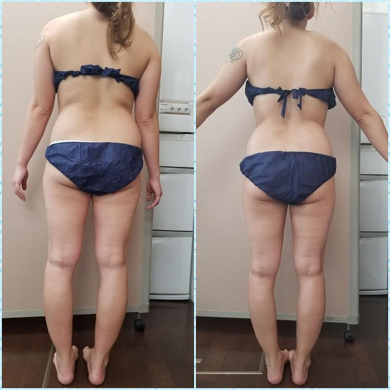 筋膜リリースで痩せ体型