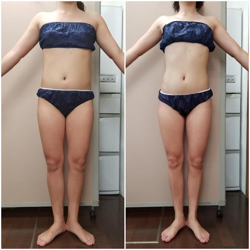 筋膜リリース 1ヵ月の結果