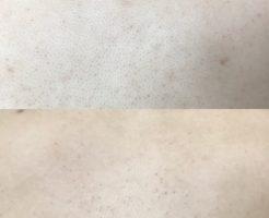 毛孔性苔癬