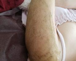 毛孔性苔癬 改善